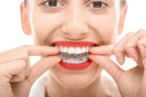 woman with invisalign braces