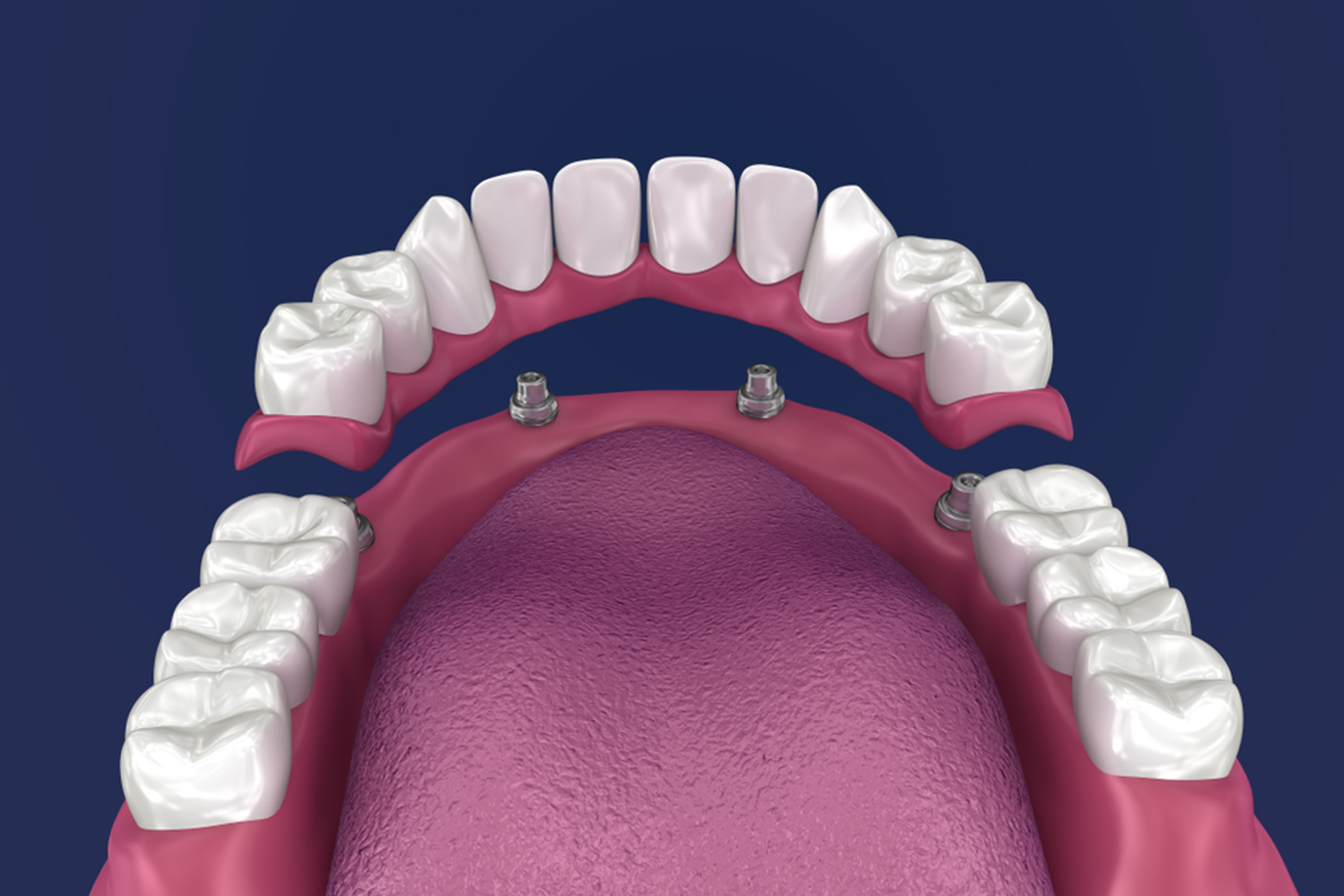 Why Dental Implants Are Becoming So Popular